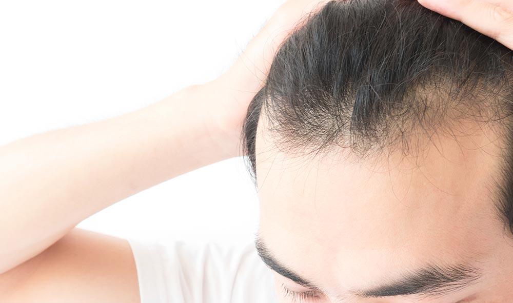AGA治療(男性型脱毛症)